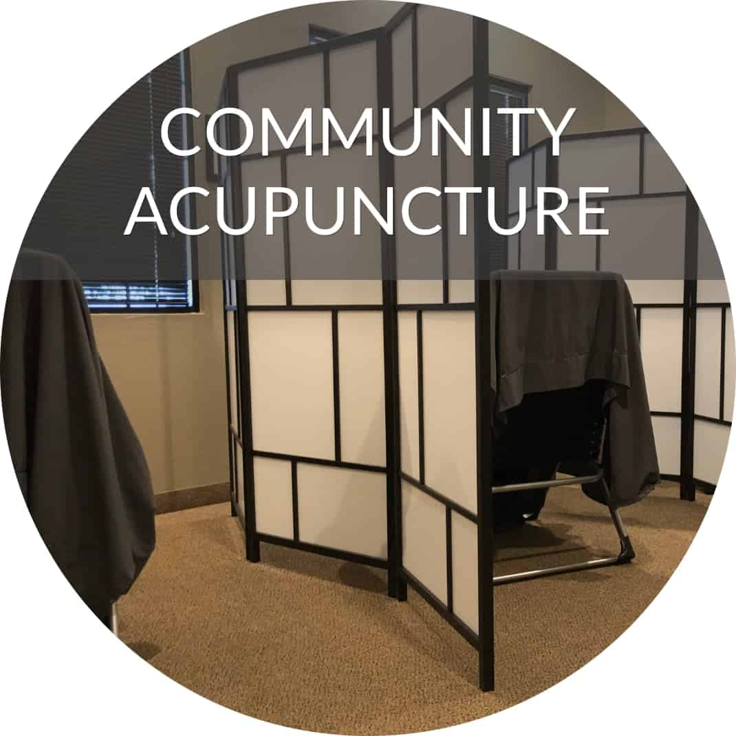 community acupuncture chairs and room dividers